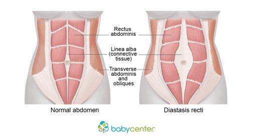 Image result for diastasis rectus abdominis