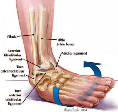 It's NOT Only an Ankle Sprain - Physiotherapy in Burnie & Somerset -  Coastal Physiotherapy