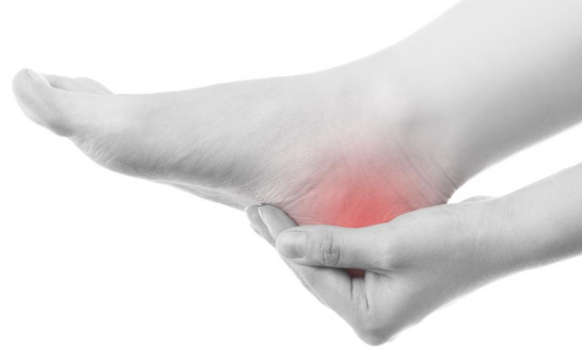Heel Pain? It Could be Plantar Fasciitis