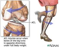 Image result for pictures acl injury