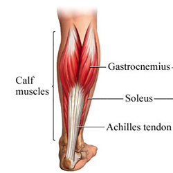 Image result for calf strain picture