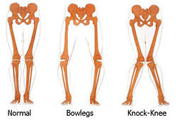 Bowlegs and Knock-Knees - Children's Orthopaedic and Scoliosis ...