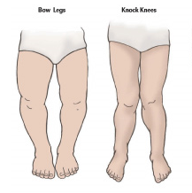 Bowed Legs and Knocked Knees